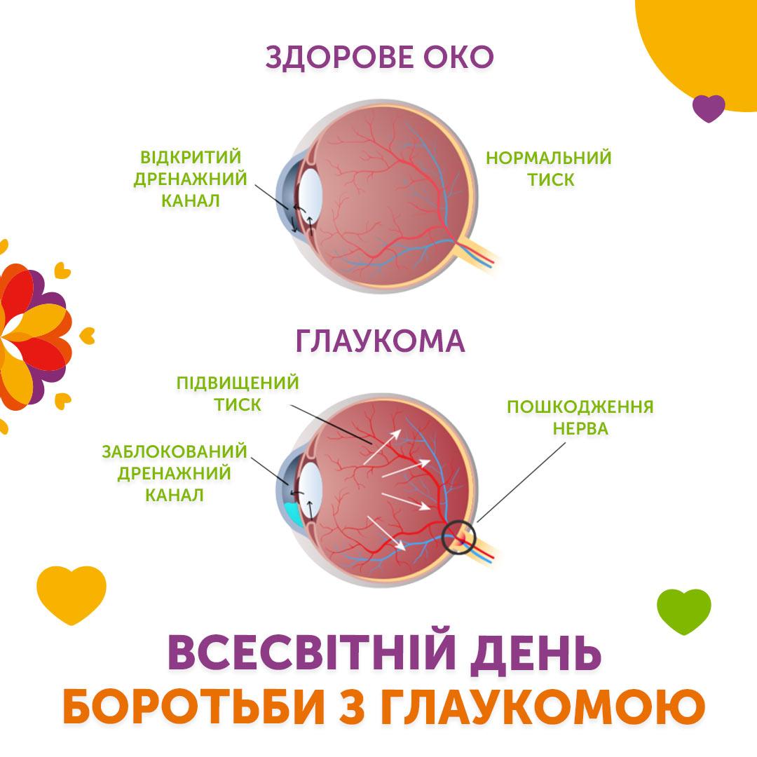 Всесвітній день боротьби з глаукомою 👁
