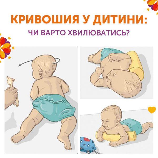 Кривошея у ребенка: стоит ли волноваться?