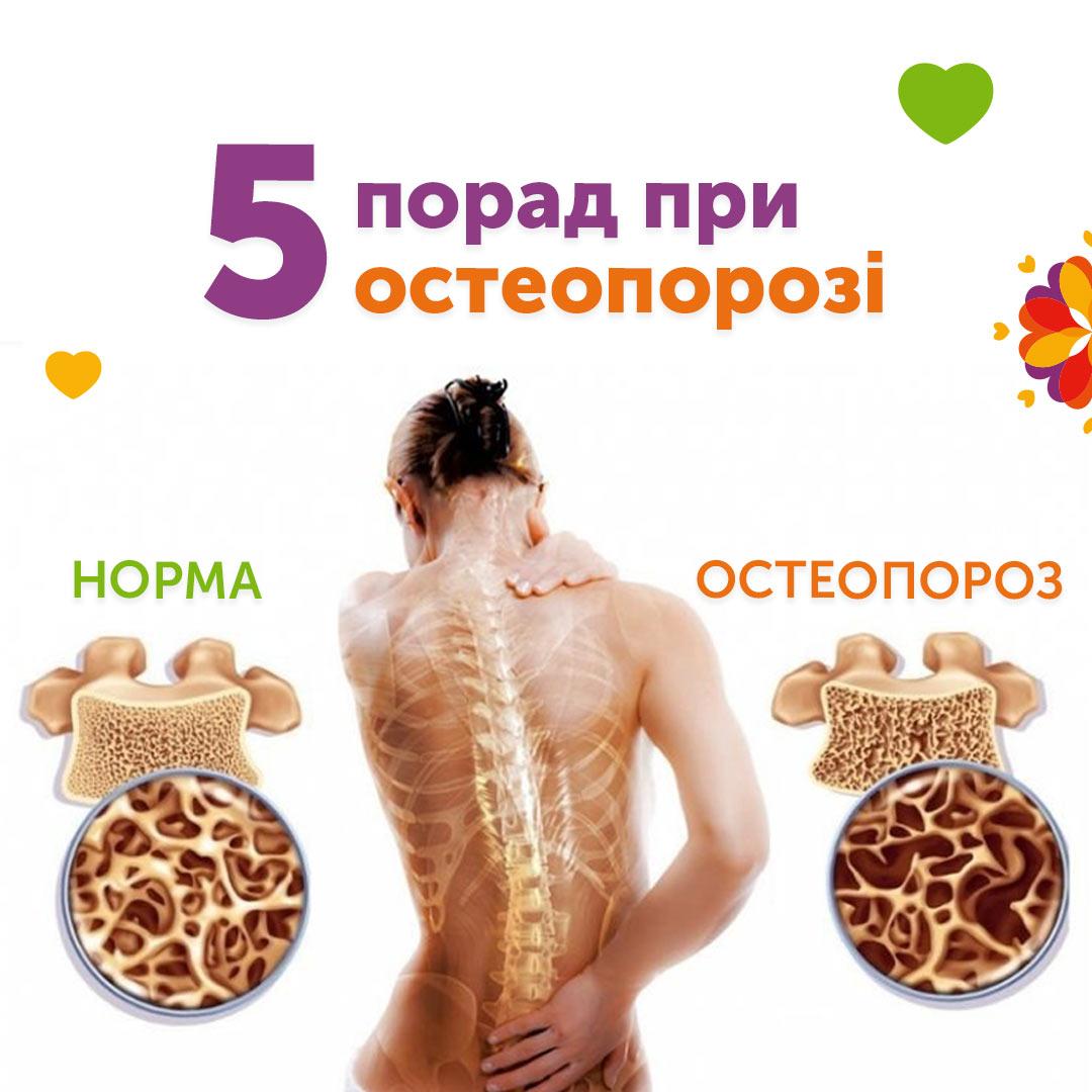 5 порад при остеопорозі