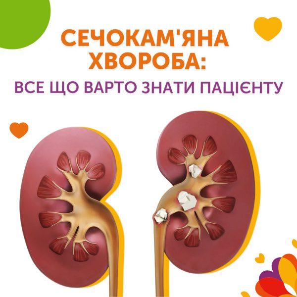 Сечокам'яна хвороба: все що варто знати пацієнту